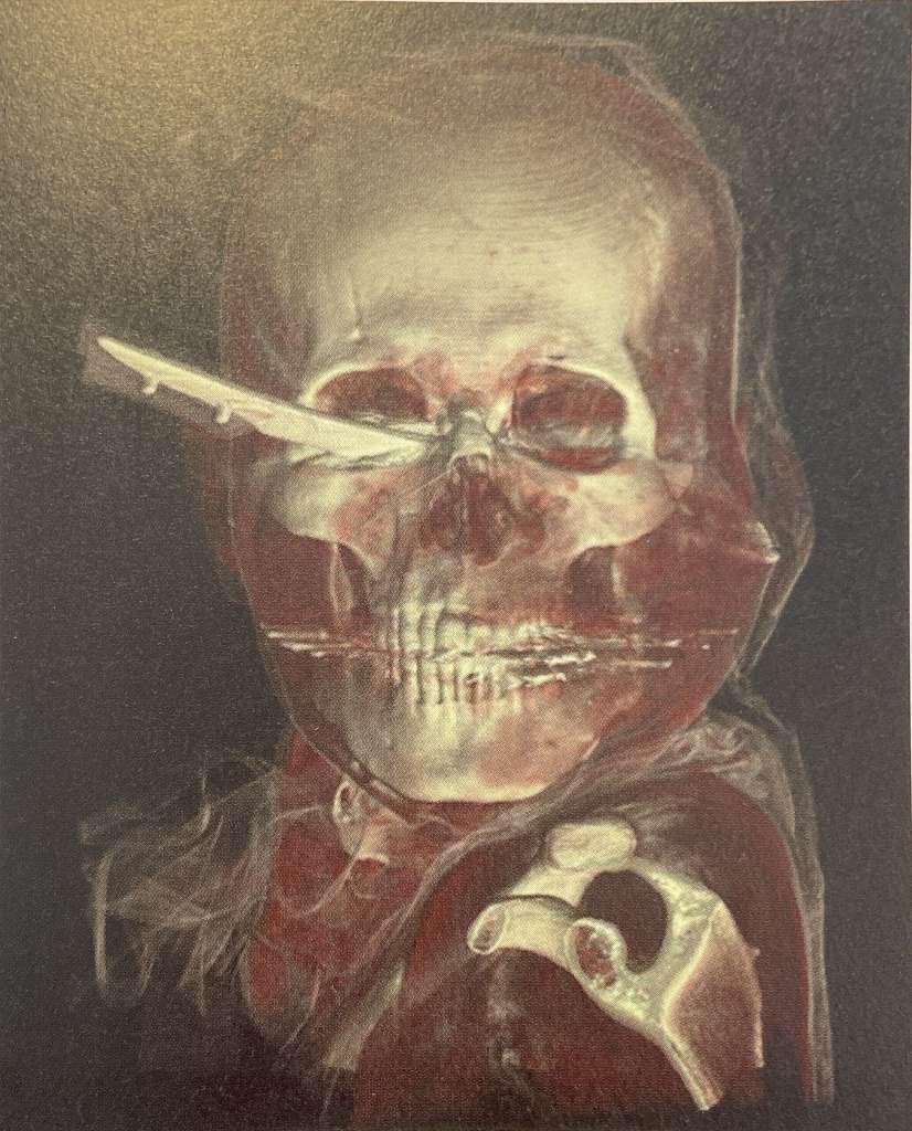 CTによって、体内に残る金属片を容易に識別できる